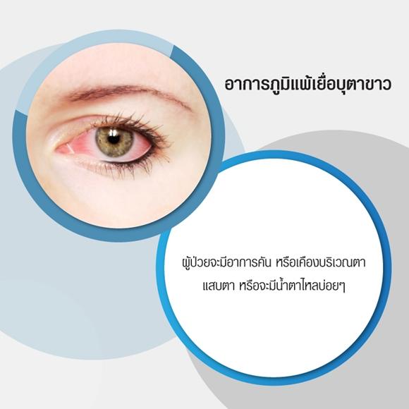 อาการภูมิแพ้เยื่อบุตาขาว